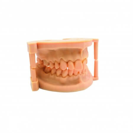 3D Drucker DLP Resin - Druckwege - Type D - DENTAL
